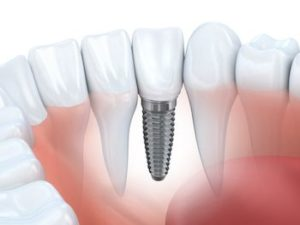 overland park dental implants