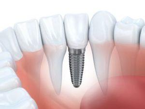 overland park dental implants