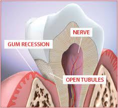 Sensitive Teeth Cutaway Pic