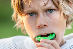 Mouth Guard Picture
