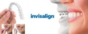 invisalign-vs-braces