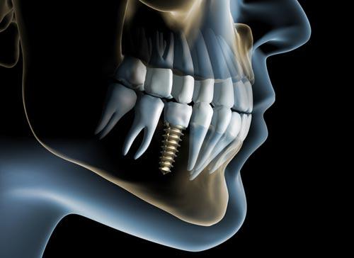 affordable-dental-implants
