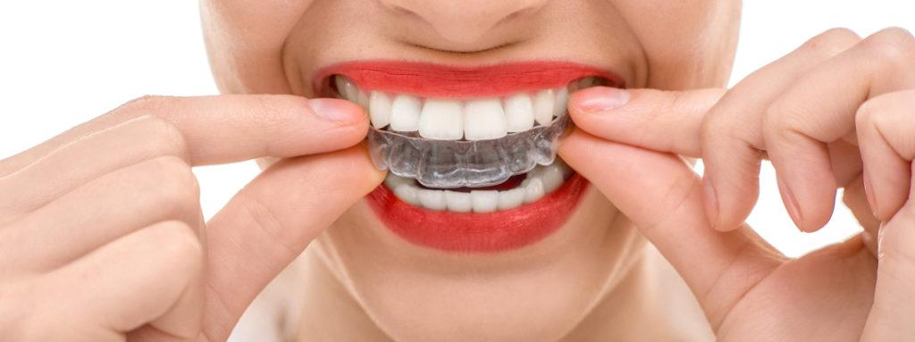 invisalign-dentist