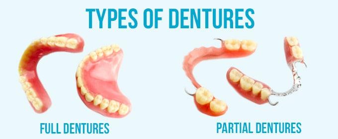 dentures-and-partials