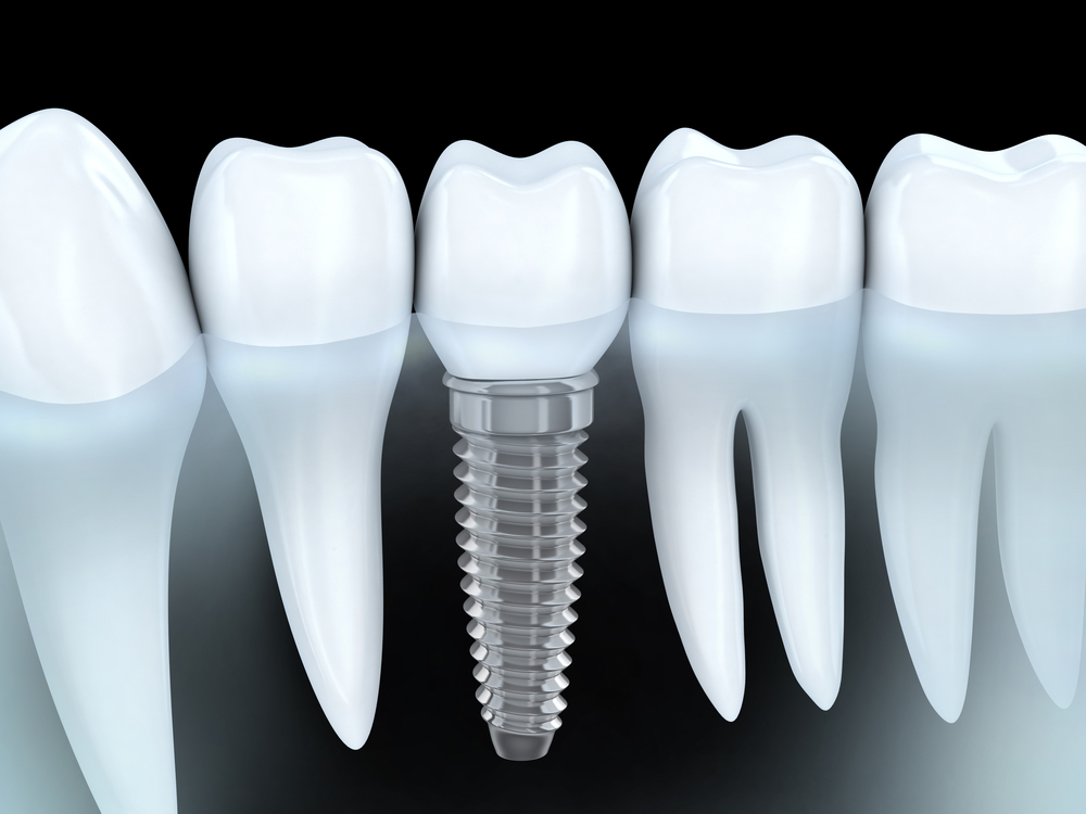 tooth-replacment-with-dental-implants
